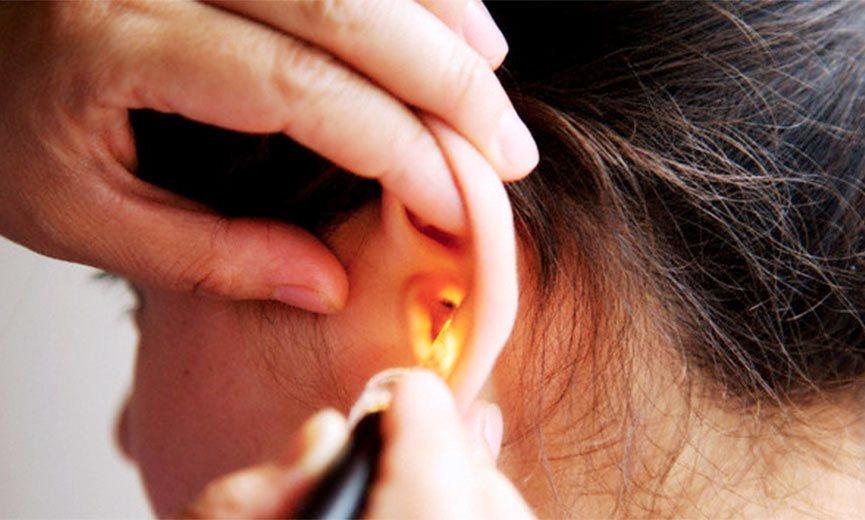 ¿Qué es la cera que se forma en el oído?